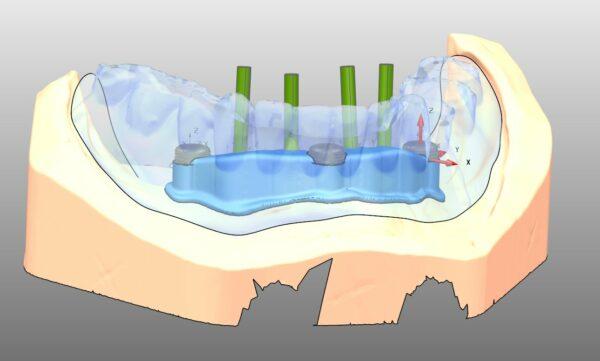 titanium baarconstructie met secundaire huls locators